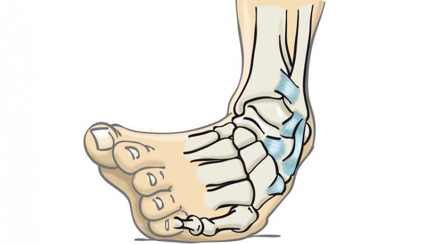 Mecanismo de lesión del esguince de tobillo: inversión (pie hacia dentro)