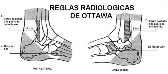 Reglas de Otawwa Si existe dolor en el borde posterior de los últimos 6 cm del maleolo externo o del maleolo interno Si existe dolor en navicular o base del quinto metatarsiano Si no puede dar 4 pasos cargando el peso Se debe realizar radiografía