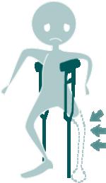 Muñeco con pierna izquierda amputada